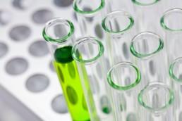 PSA-prov upptäcker prostatacancer
